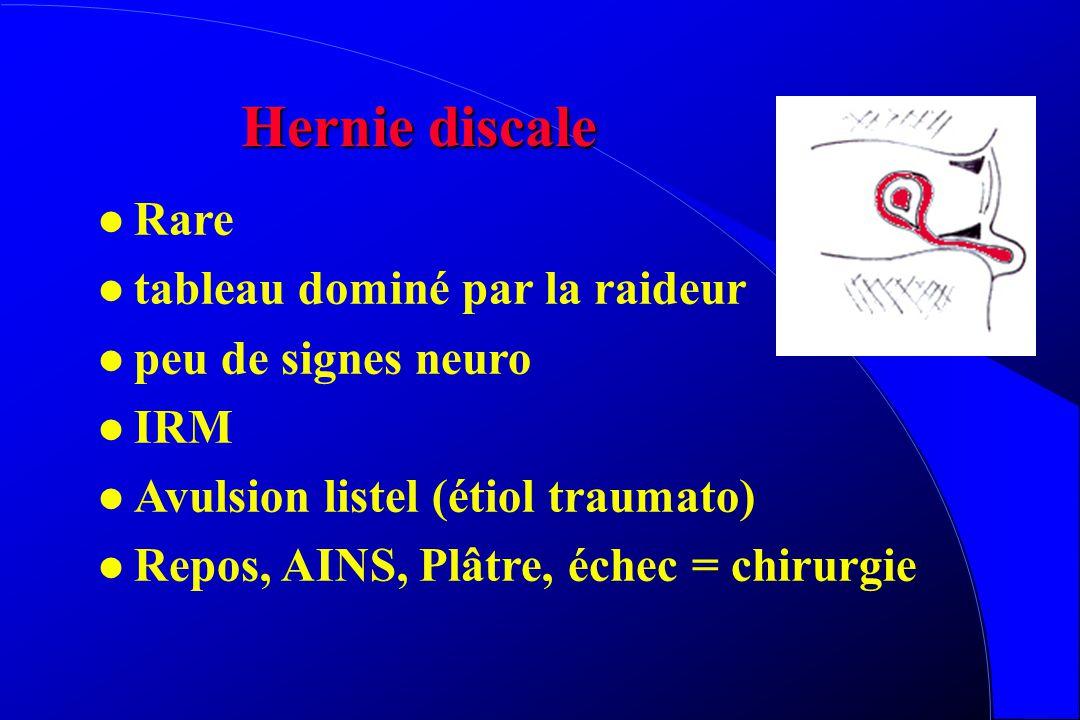 Hernie discale Rare tableau dominé par la raideur peu de signes neuro