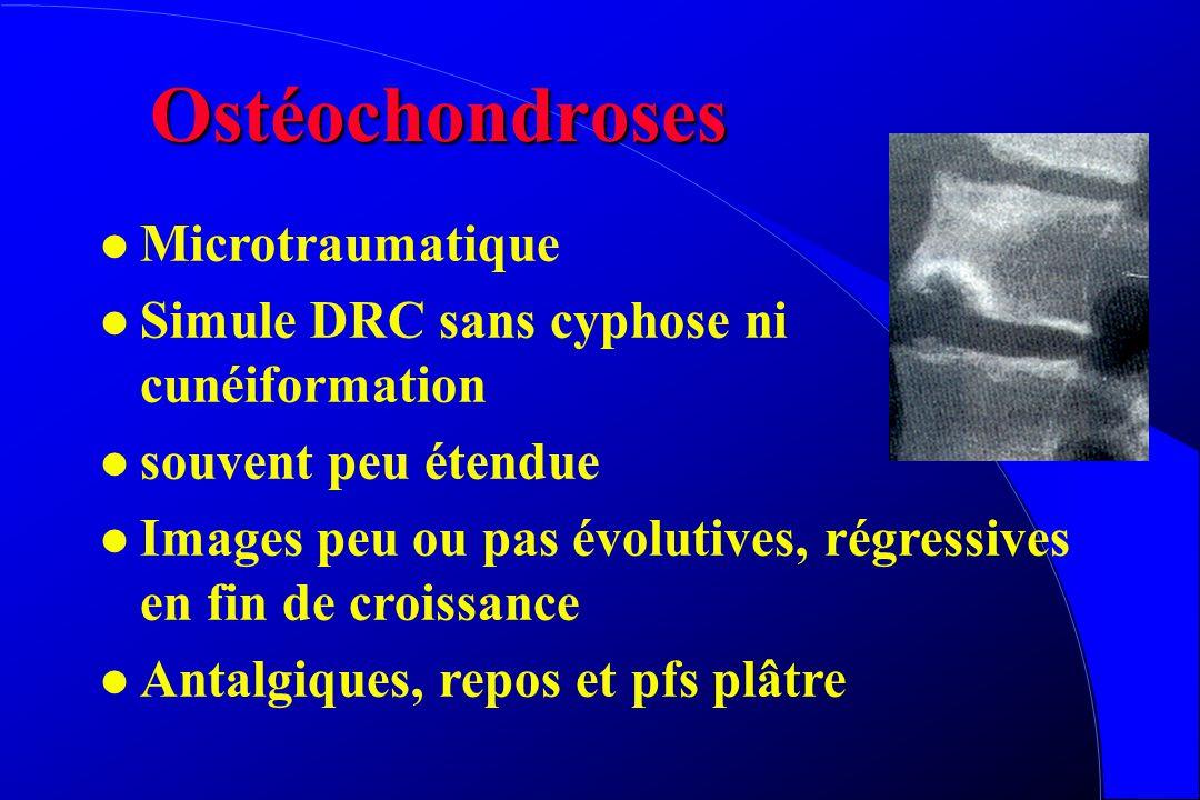 Ostéochondroses Microtraumatique