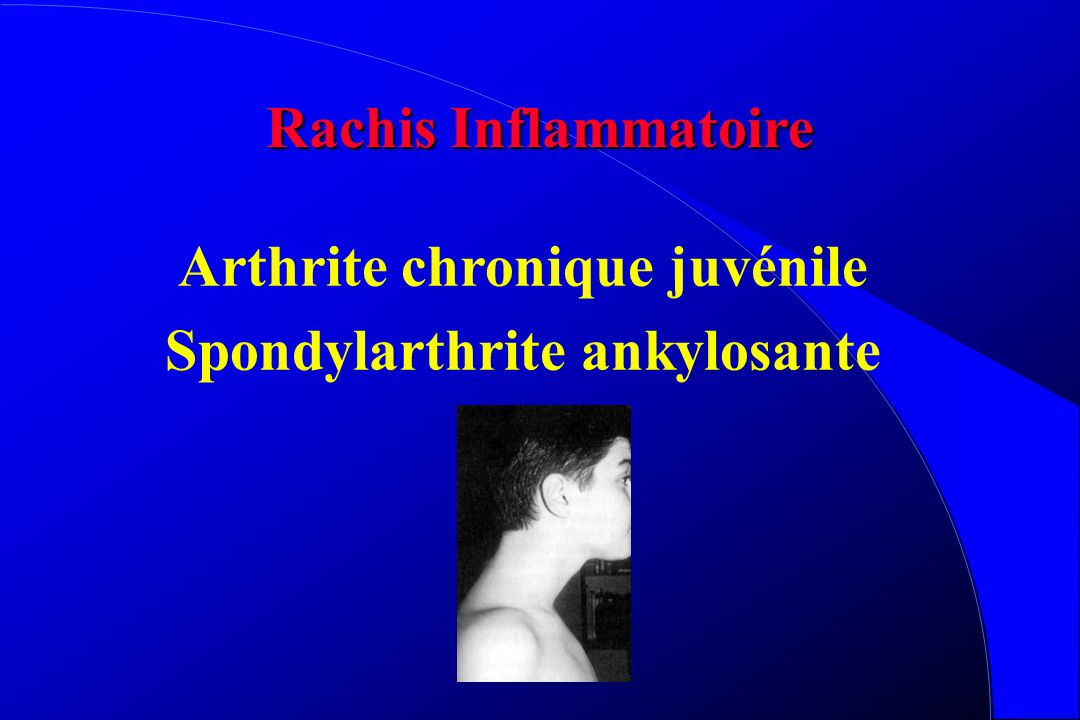 Arthrite chronique juvénile Spondylarthrite ankylosante