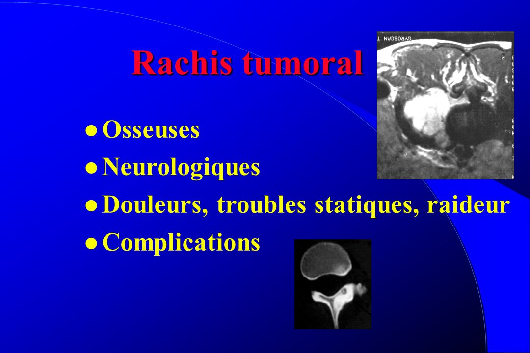 Rachis tumoral Osseuses Neurologiques