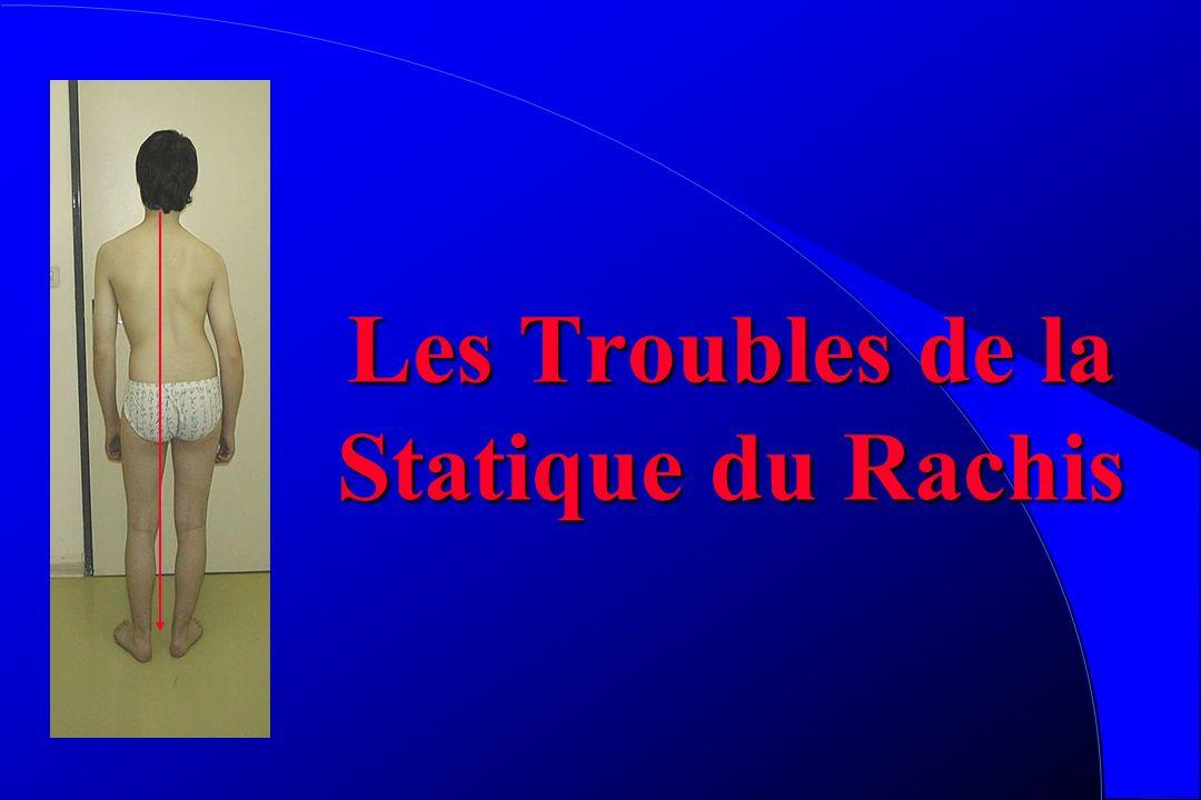 Les Troubles de la Statique du Rachis