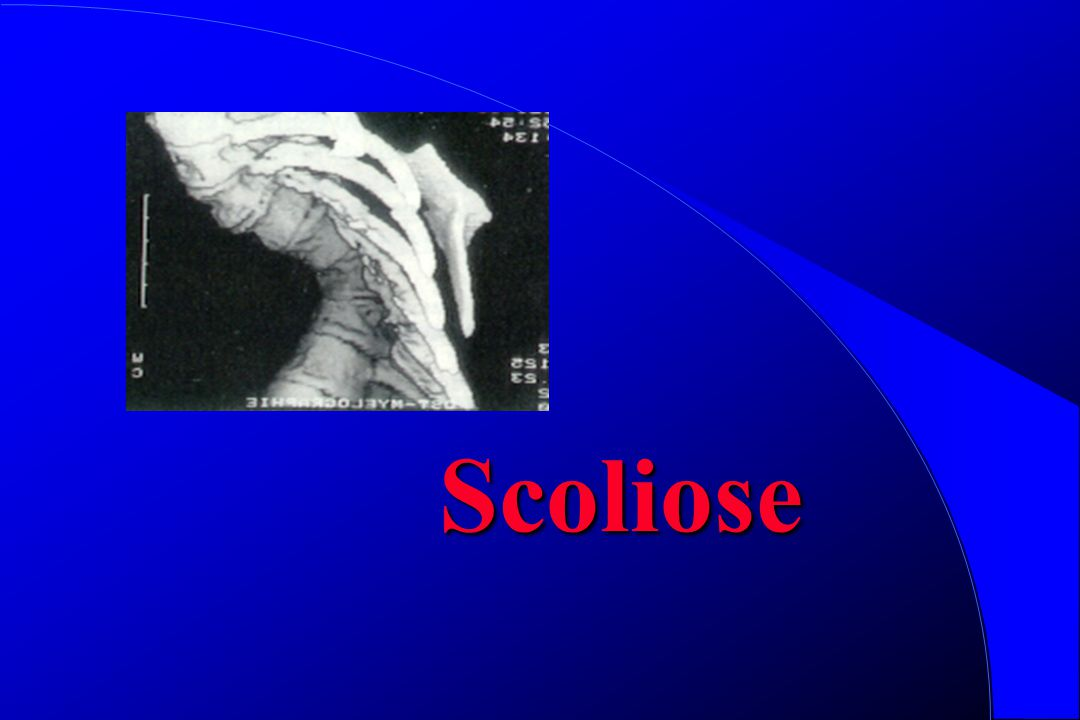 Scoliose