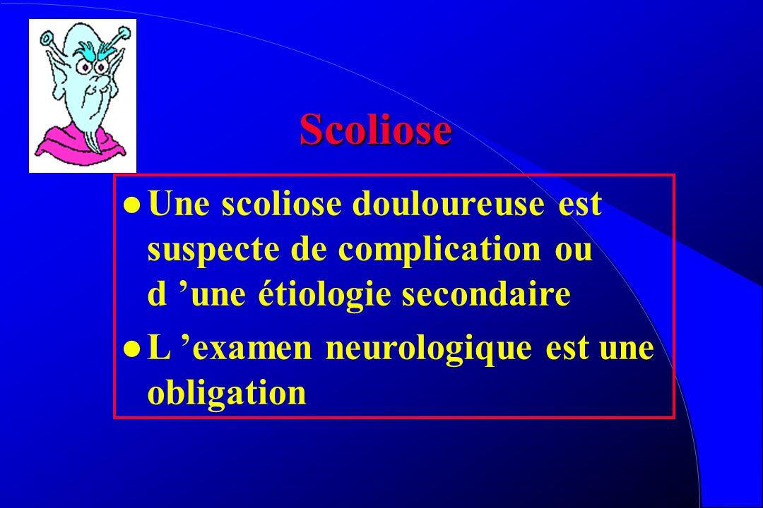 Scoliose Une scoliose douloureuse est suspecte de complication ou d 'une étiologie secondaire.