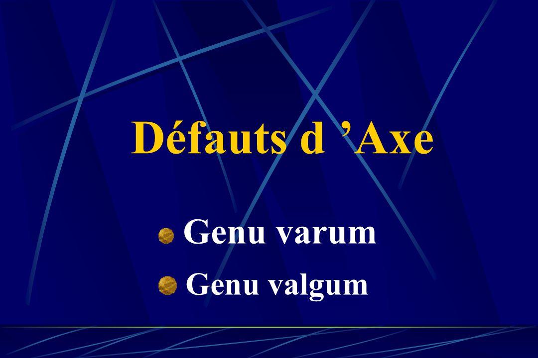 Défauts d 'Axe Genu varum Genu valgum