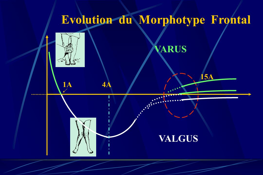Evolution du Morphotype Frontal