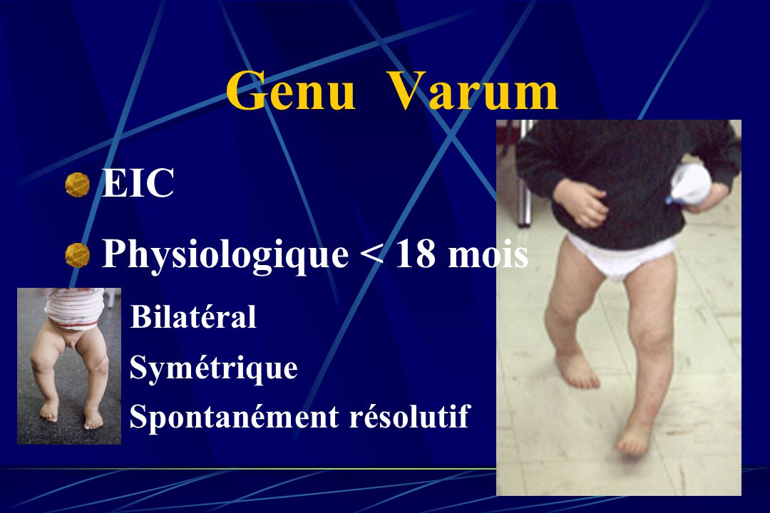 Genu Varum EIC Physiologique < 18 mois Bilatéral Symétrique