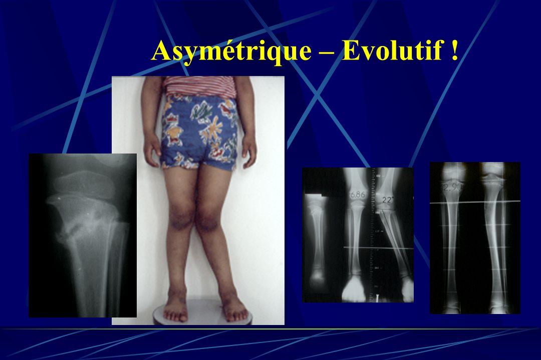 Asymétrique – Evolutif !