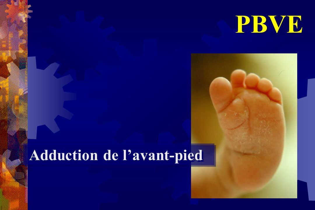 PBVE Adduction de l'avant-pied