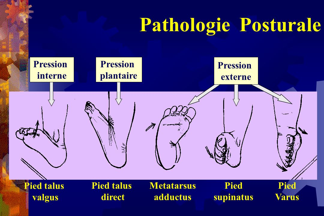 Pathologie Posturale Pression interne Pression plantaire Pression