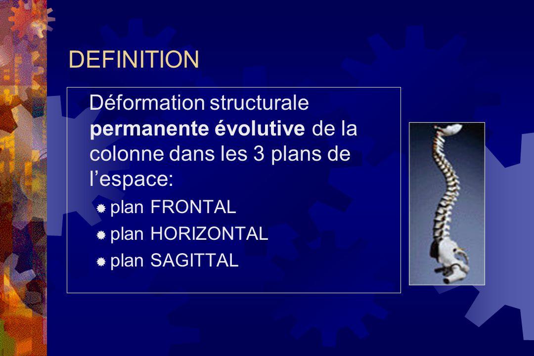 DEFINITION Déformation structurale permanente évolutive de la colonne dans les 3 plans de l'espace: