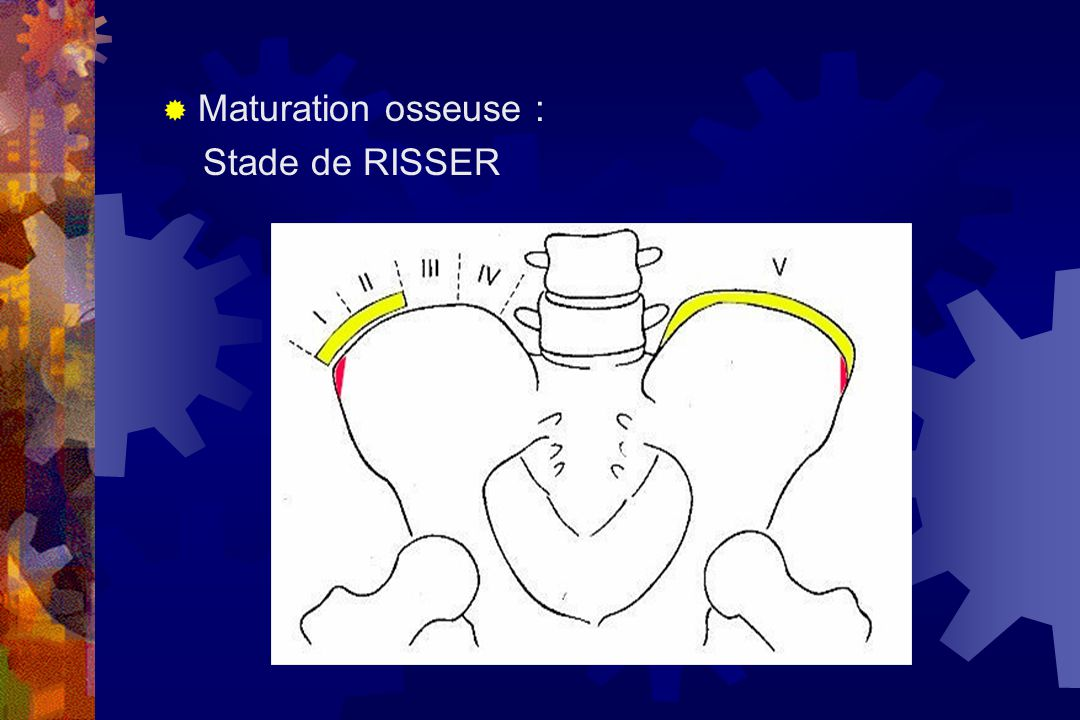 Maturation osseuse : Stade de RISSER