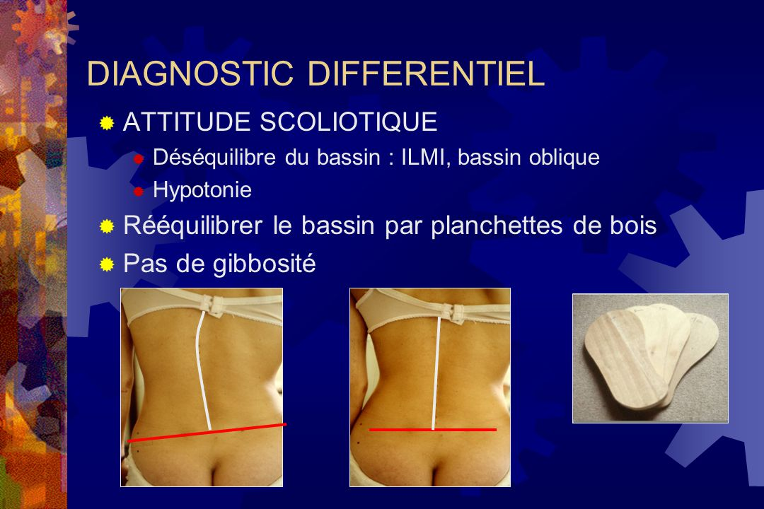 DIAGNOSTIC DIFFERENTIEL