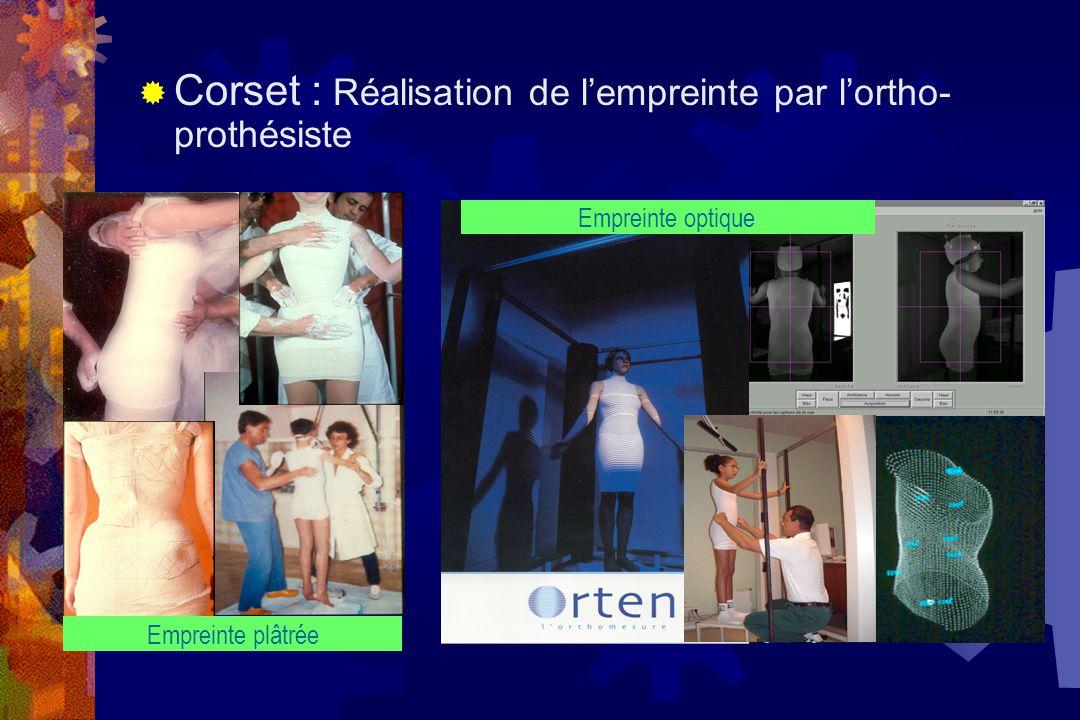 Corset : Réalisation de l'empreinte par l'ortho-prothésiste