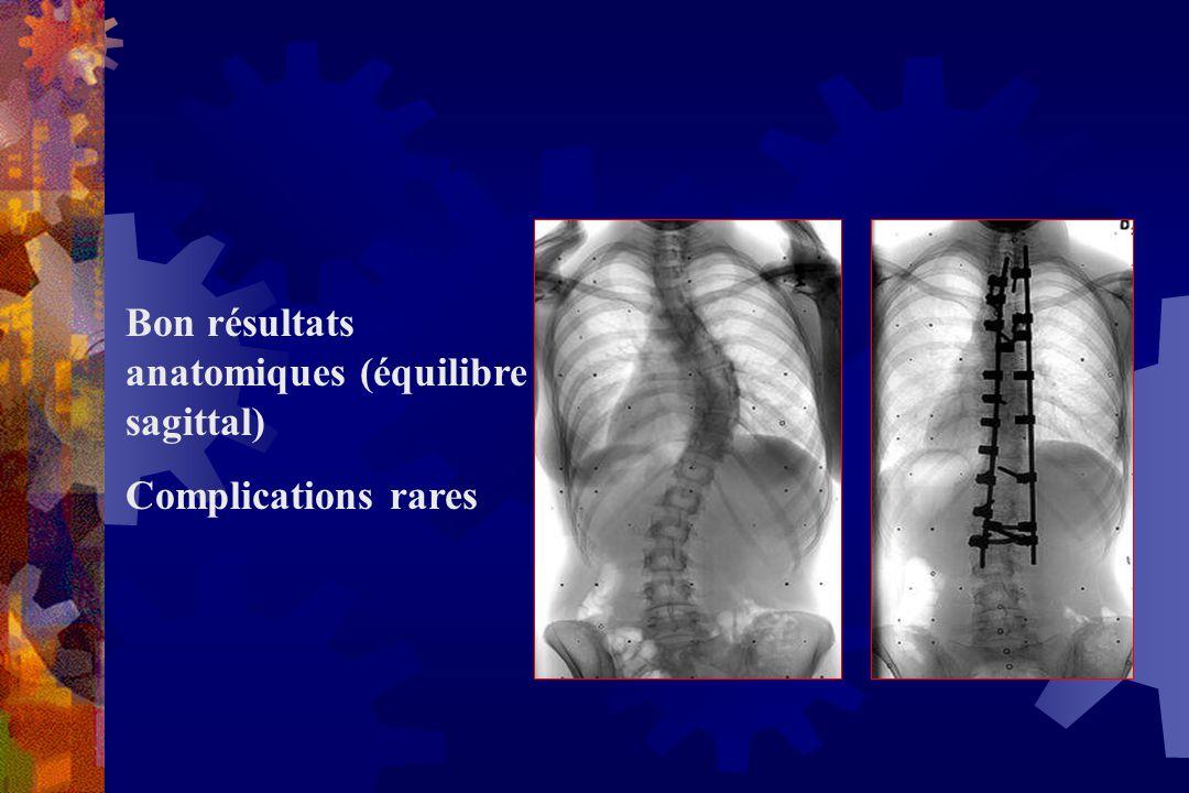 Bon résultats anatomiques (équilibre sagittal)