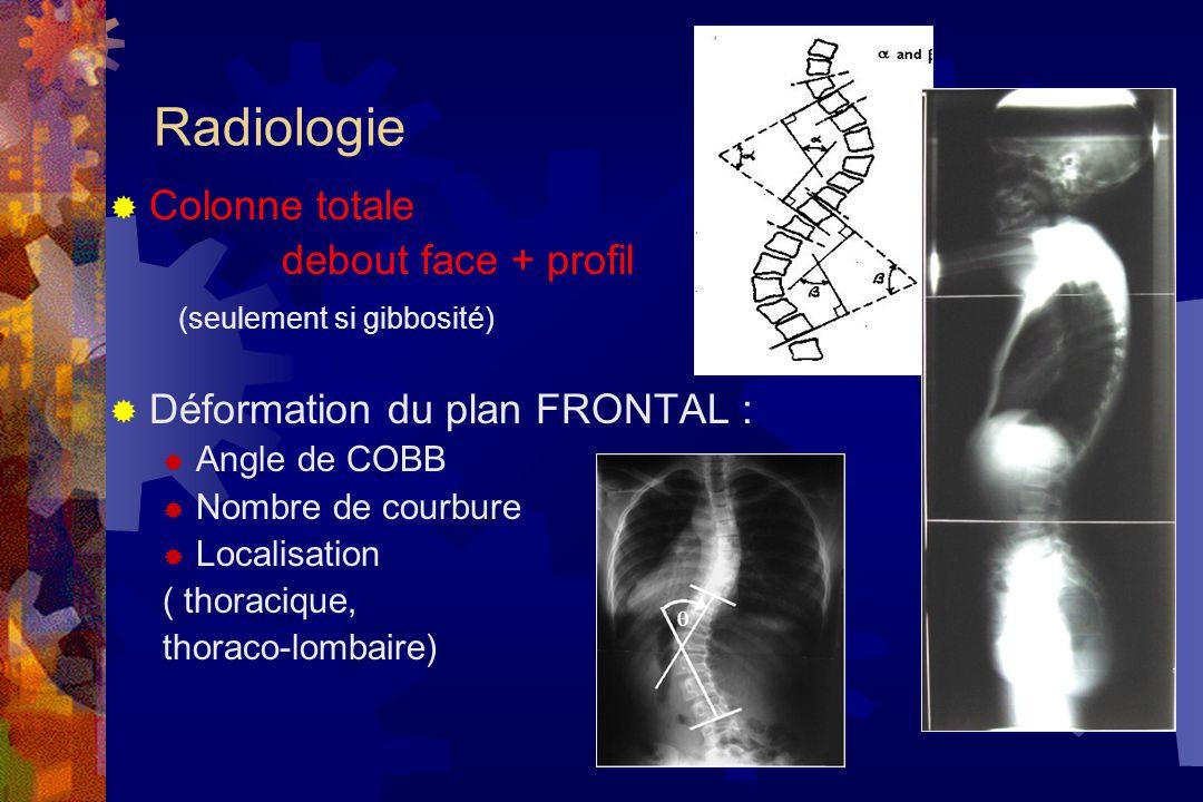 Radiologie Colonne totale debout face + profil