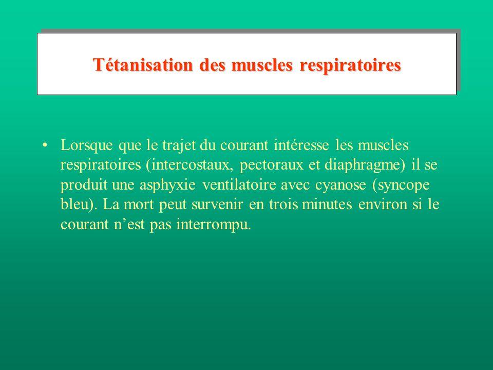 Tétanisation des muscles respiratoires