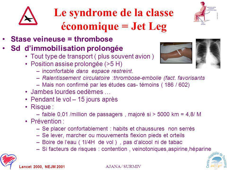 Le syndrome de la classe économique = Jet Leg
