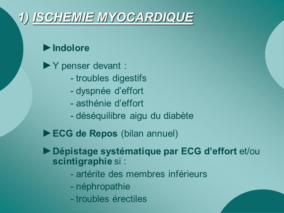 1) ISCHEMIE MYOCARDIQUE