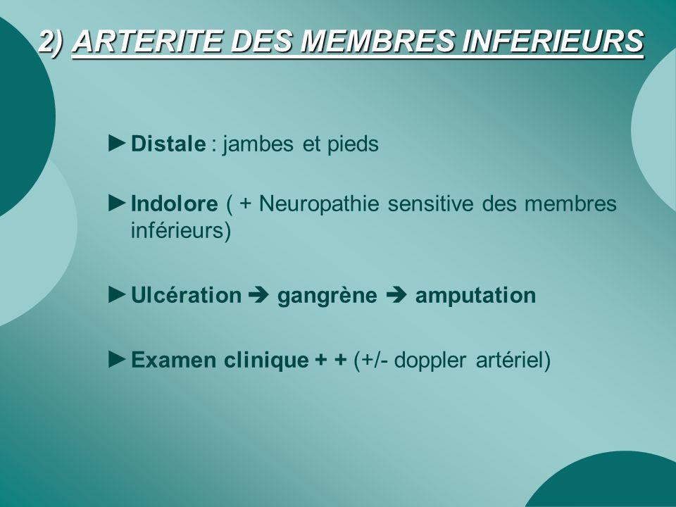 2) ARTERITE DES MEMBRES INFERIEURS