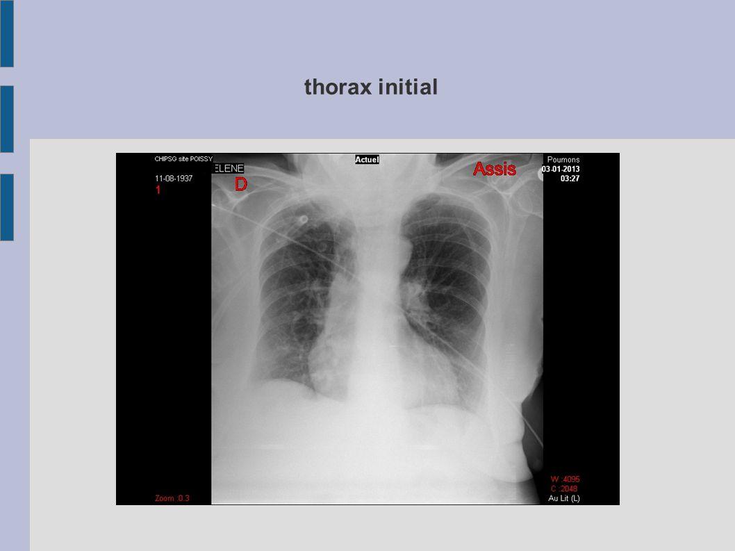 thorax initial Critères GINA asthme aigu grave : au moins 2 parmi