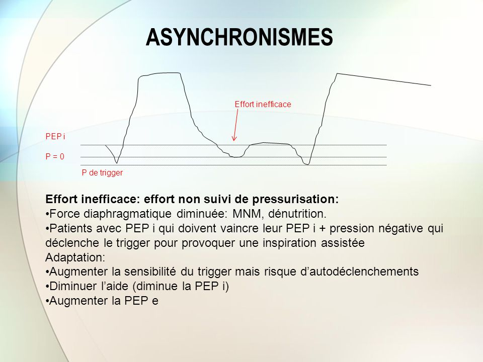ASYNCHRONISMES Effort inefficace: effort non suivi de pressurisation: