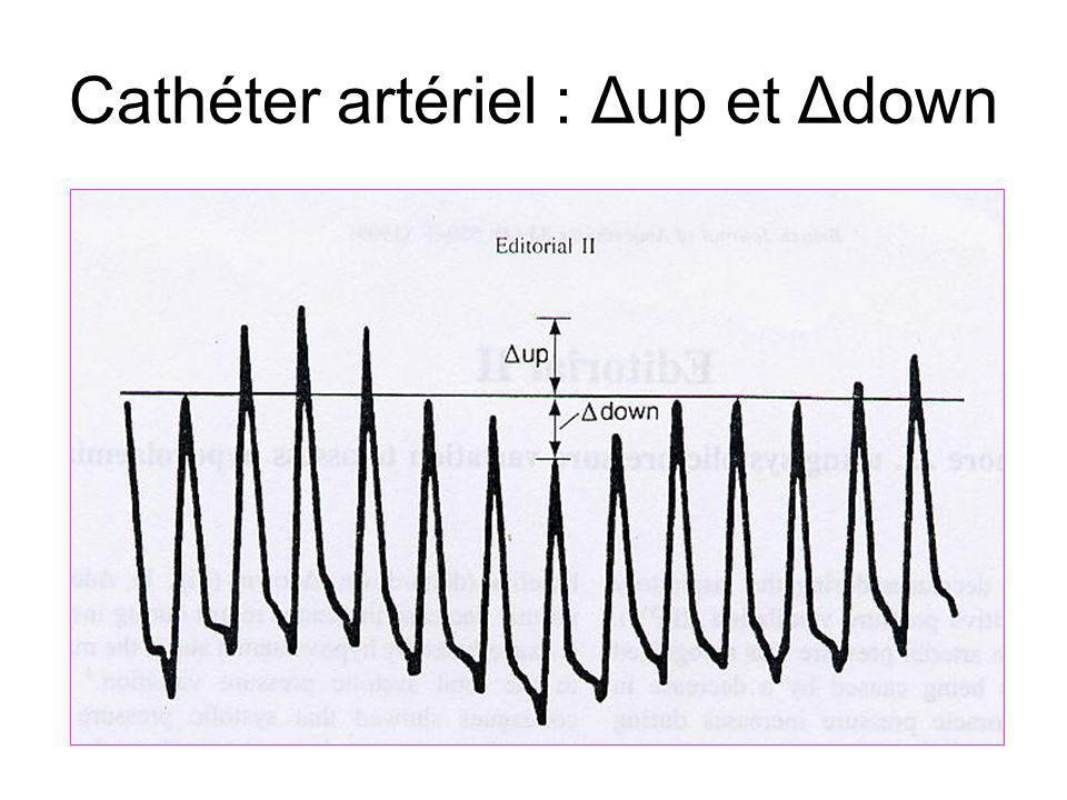 Cathéter artériel : Δup et Δdown