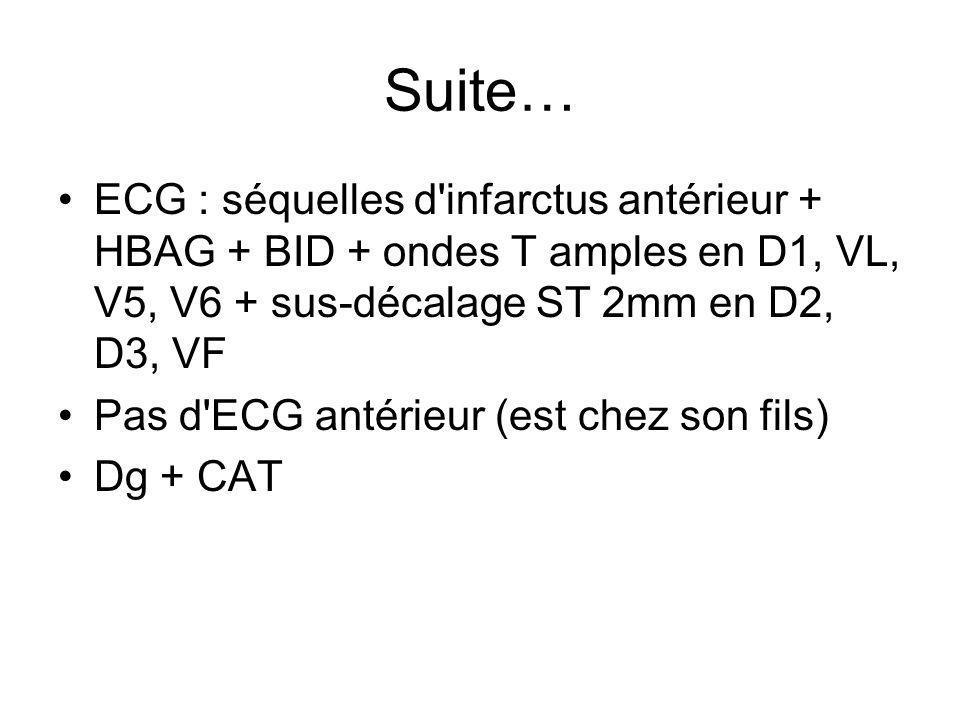 Suite… ECG : séquelles d infarctus antérieur + HBAG + BID + ondes T amples en D1, VL, V5, V6 + sus-décalage ST 2mm en D2, D3, VF.