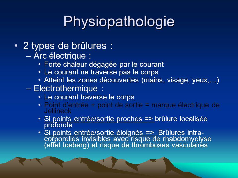Physiopathologie 2 types de brûlures : Arc électrique :