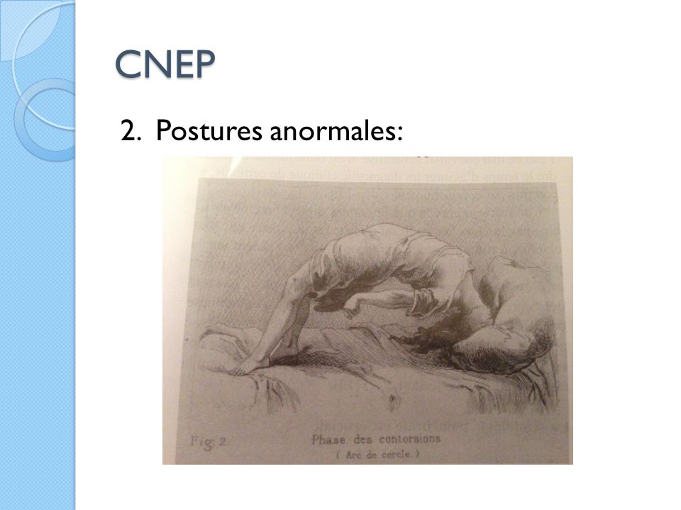 CNEP 2. Postures anormales: