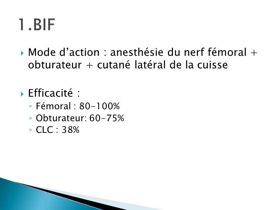 1.BIF Mode d'action : anesthésie du nerf fémoral + obturateur + cutané latéral de la cuisse. Efficacité :