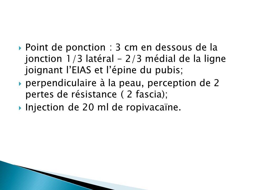 Point de ponction : 3 cm en dessous de la jonction 1/3 latéral – 2/3 médial de la ligne joignant l'EIAS et l'épine du pubis;