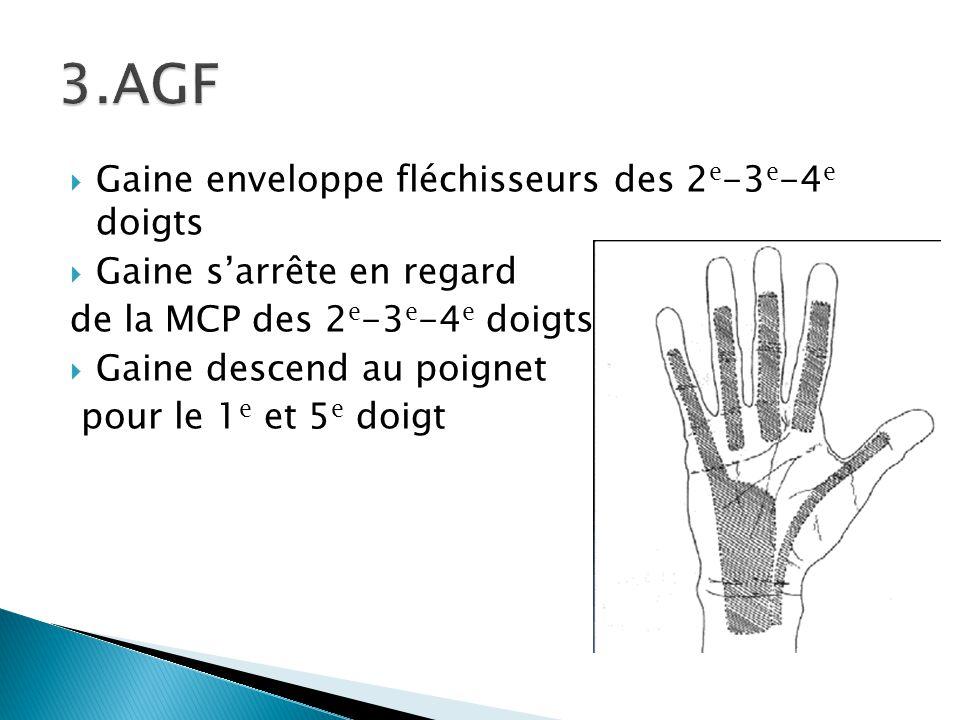 3.AGF Gaine enveloppe fléchisseurs des 2e-3e-4e doigts