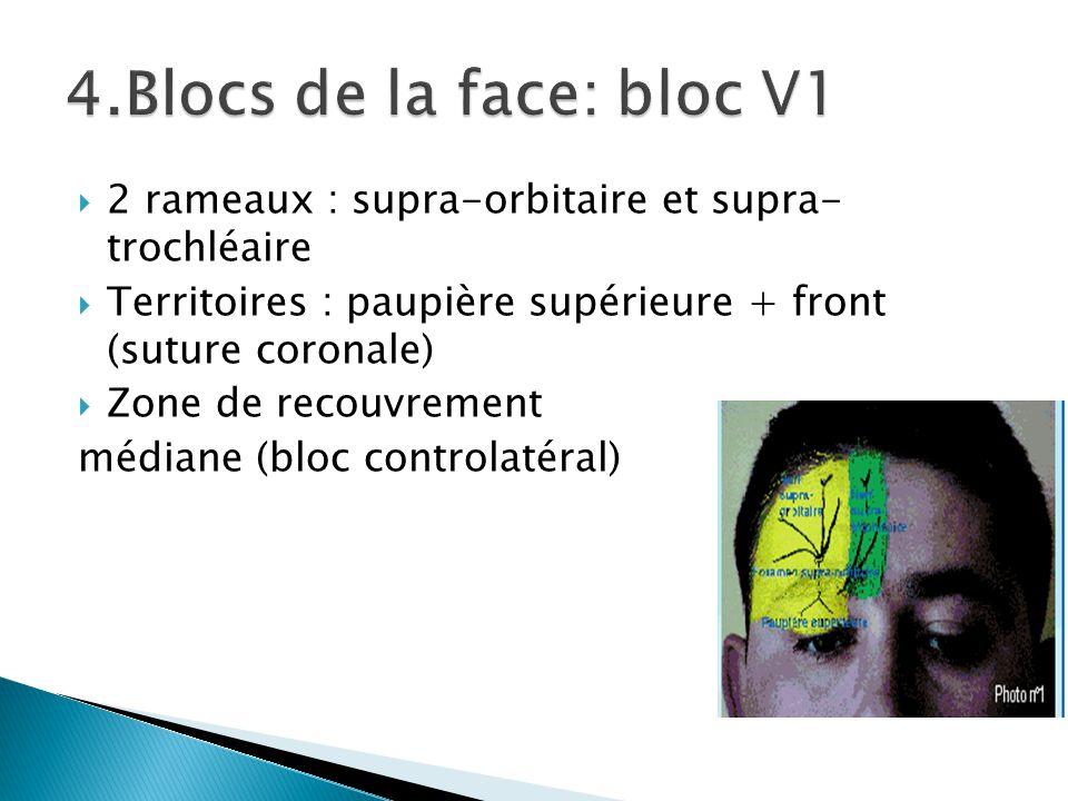 4.Blocs de la face: bloc V1 2 rameaux : supra-orbitaire et supra- trochléaire. Territoires : paupière supérieure + front (suture coronale)