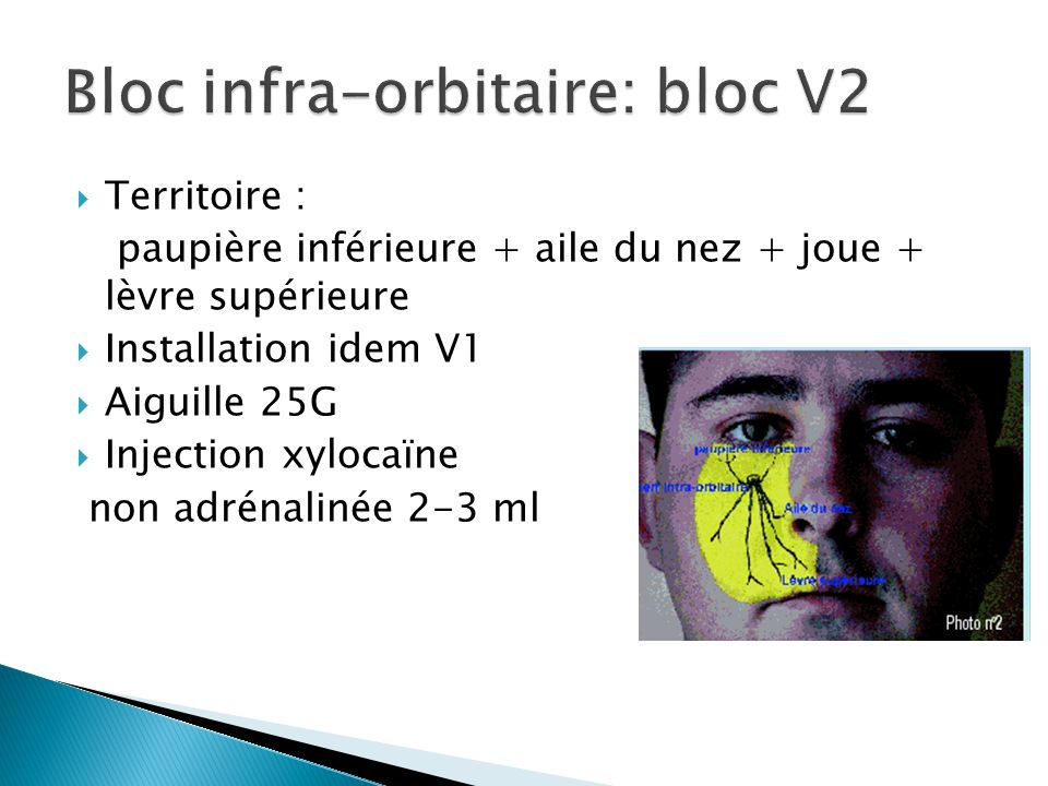 Bloc infra-orbitaire: bloc V2