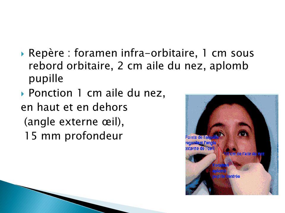 Repère : foramen infra-orbitaire, 1 cm sous rebord orbitaire, 2 cm aile du nez, aplomb pupille