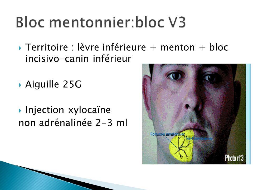 Bloc mentonnier:bloc V3