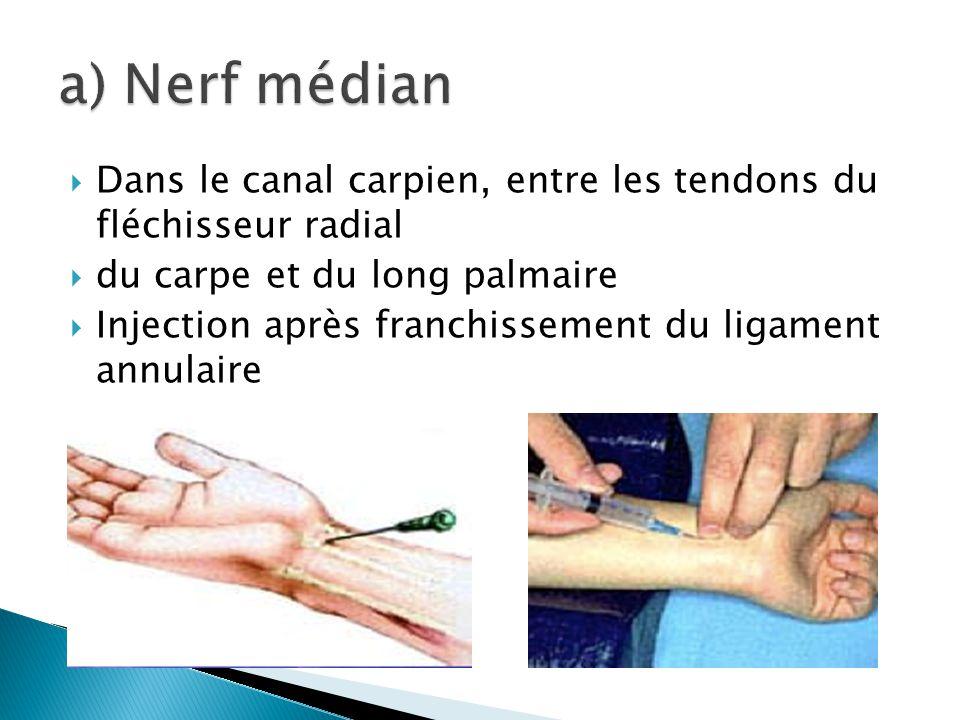 a) Nerf médian Dans le canal carpien, entre les tendons du fléchisseur radial. du carpe et du long palmaire.