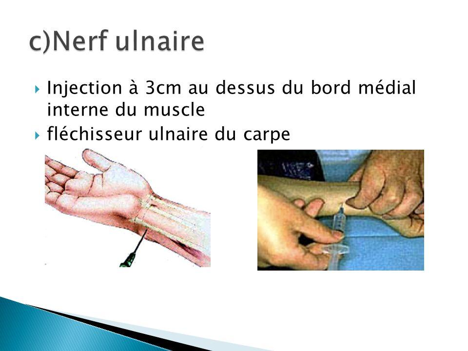 c)Nerf ulnaire Injection à 3cm au dessus du bord médial interne du muscle.