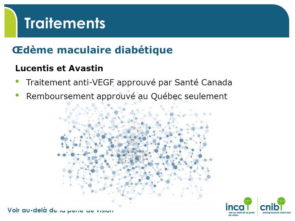 Traitements Œdème maculaire diabétique Lucentis et Avastin