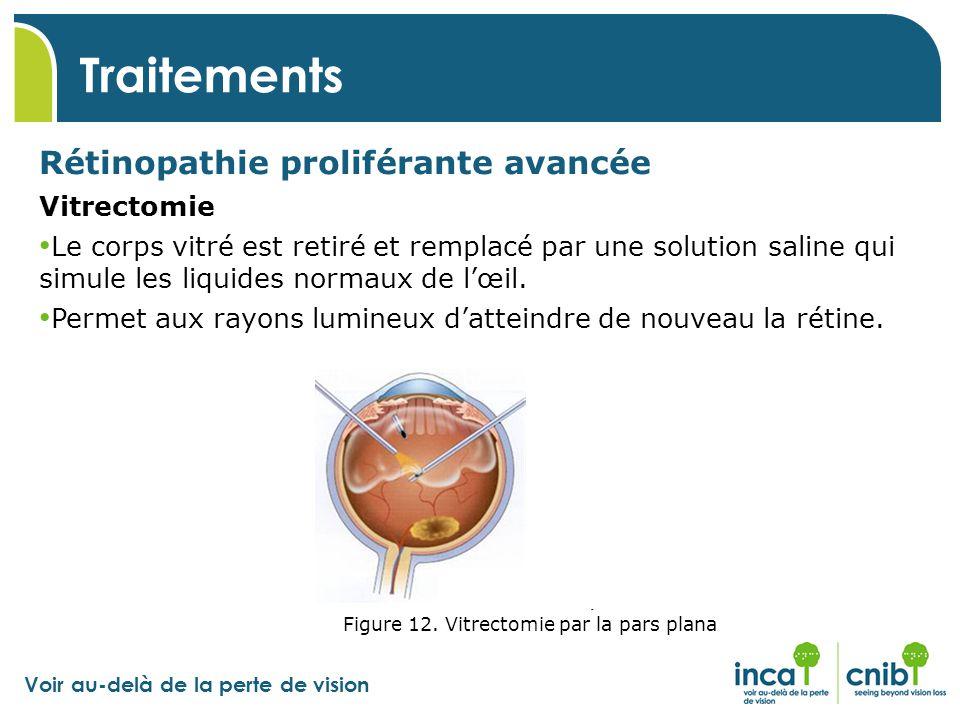 Traitements Rétinopathie proliférante avancée Vitrectomie