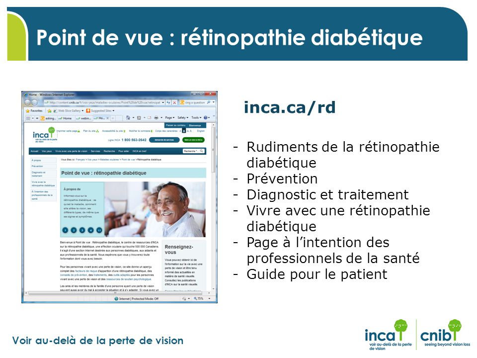 Point de vue : rétinopathie diabétique