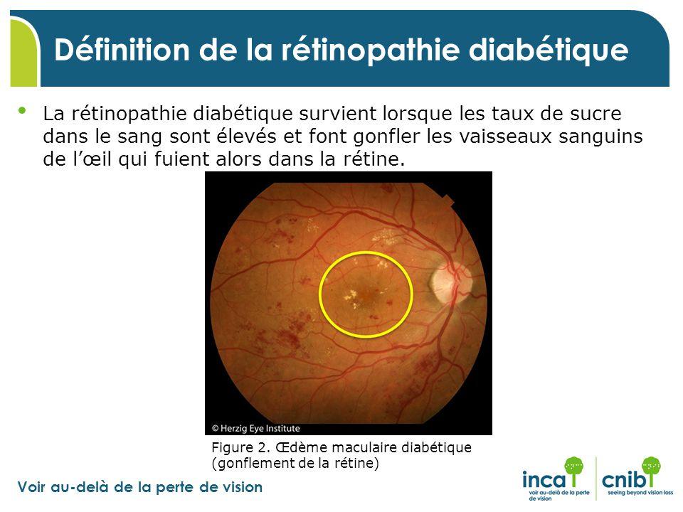 Définition de la rétinopathie diabétique