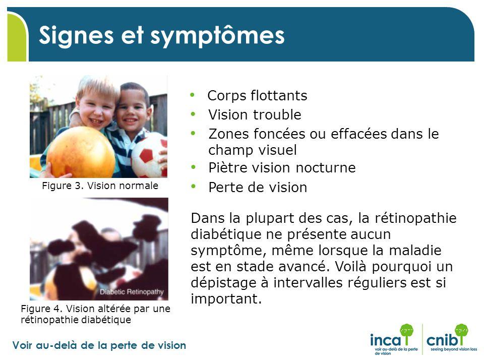 Signes et symptômes Corps flottants Vision trouble