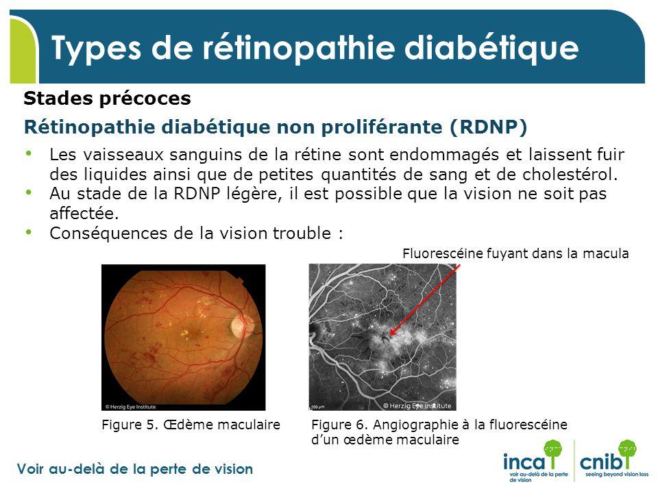 Types de rétinopathie diabétique