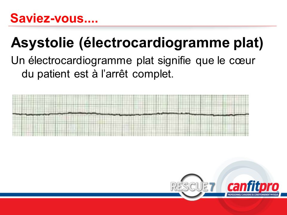Asystolie (électrocardiogramme plat)
