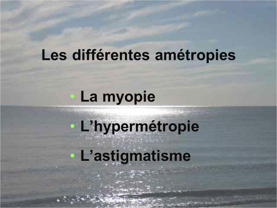 Les différentes amétropies