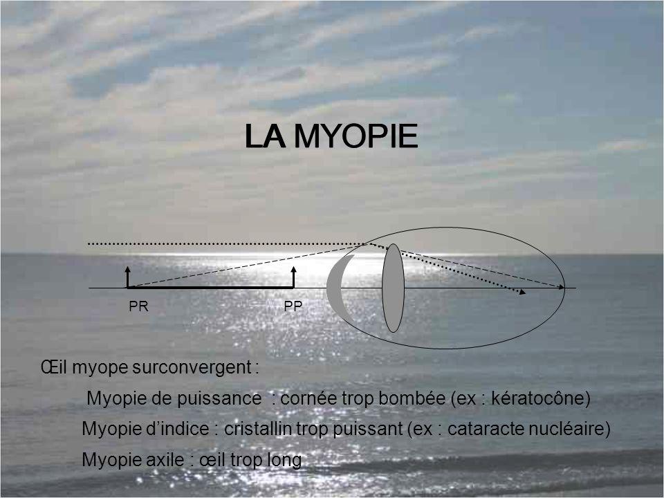 LA MYOPIE LA MYOPIE Œil myope surconvergent :