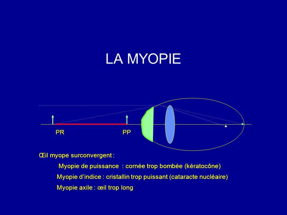 LA MYOPIE PR PP Œil myope surconvergent :