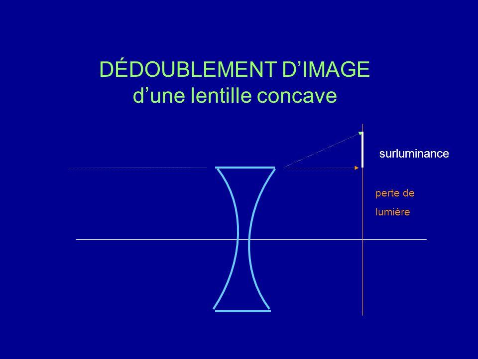 DÉDOUBLEMENT D'IMAGE d'une lentille concave