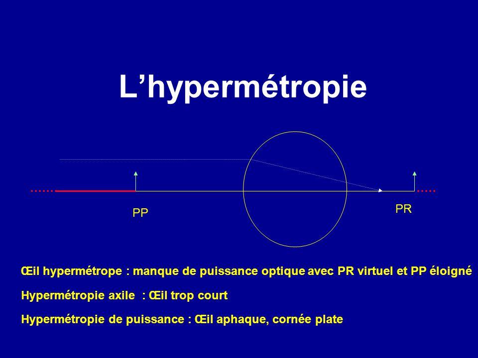 L'hypermétropie PR. PP. Œil hypermétrope : manque de puissance optique avec PR virtuel et PP éloigné.